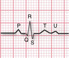 What is the normal composition of an electrocardiograms (ECG/EKG)?