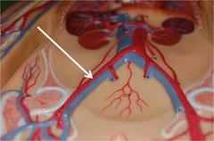 Common iliac artery