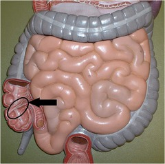 Ileocecal valve