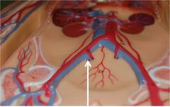 Internal iliac vein