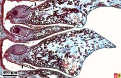 megagametophyte