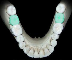 Second Molar