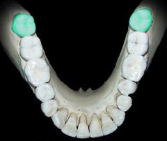 Third Molar