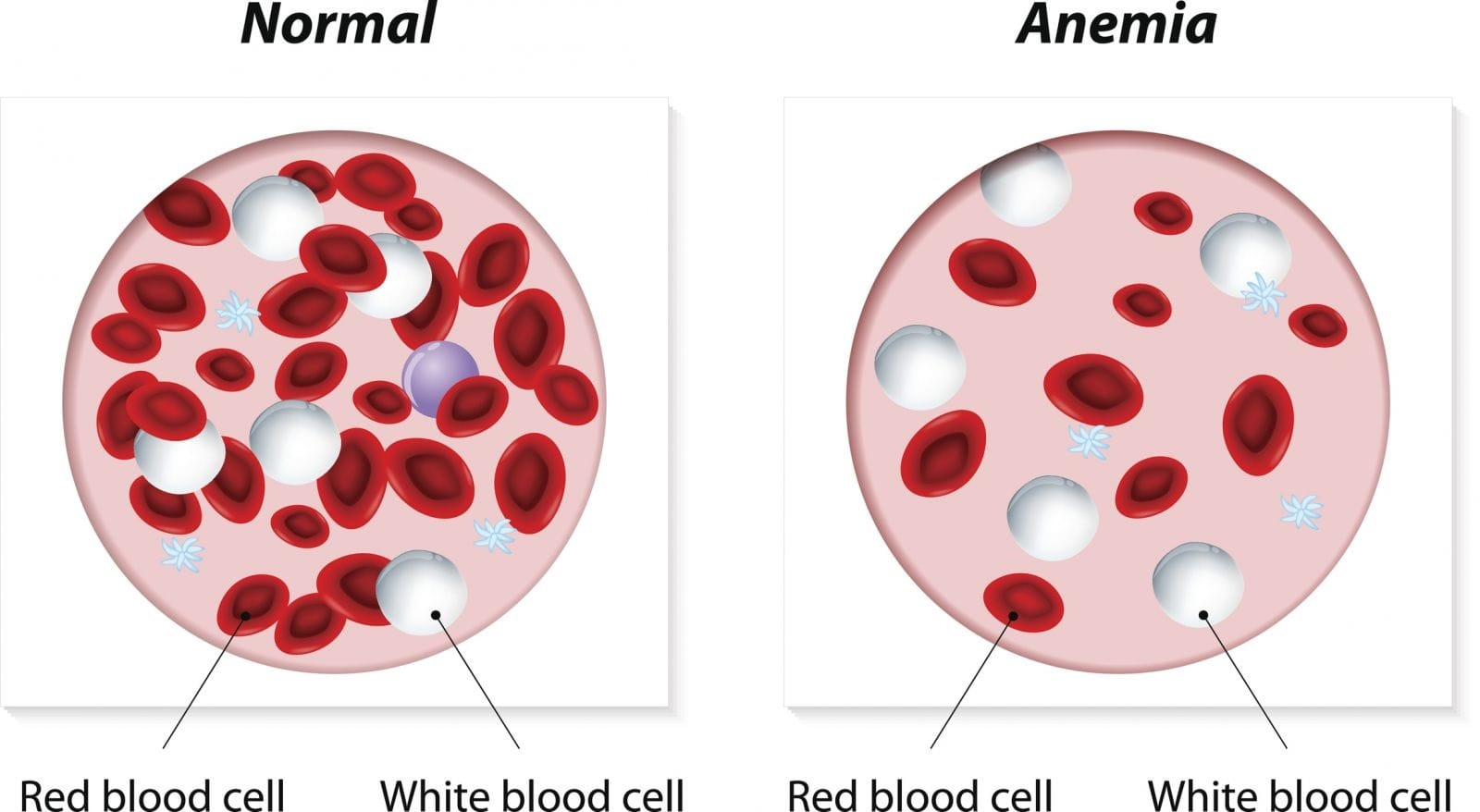 Essay about Anemia