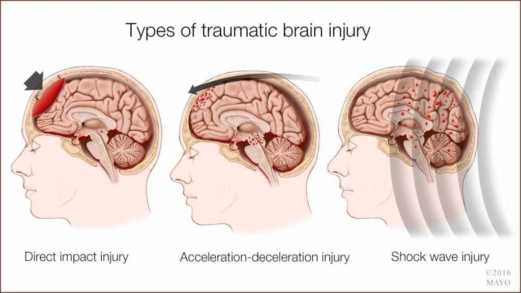 Essays on Brain Injury